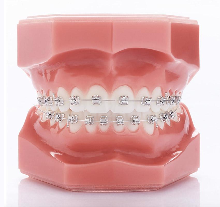 Bagues rodhium - Orthodontie Lyon Croix-Roussse