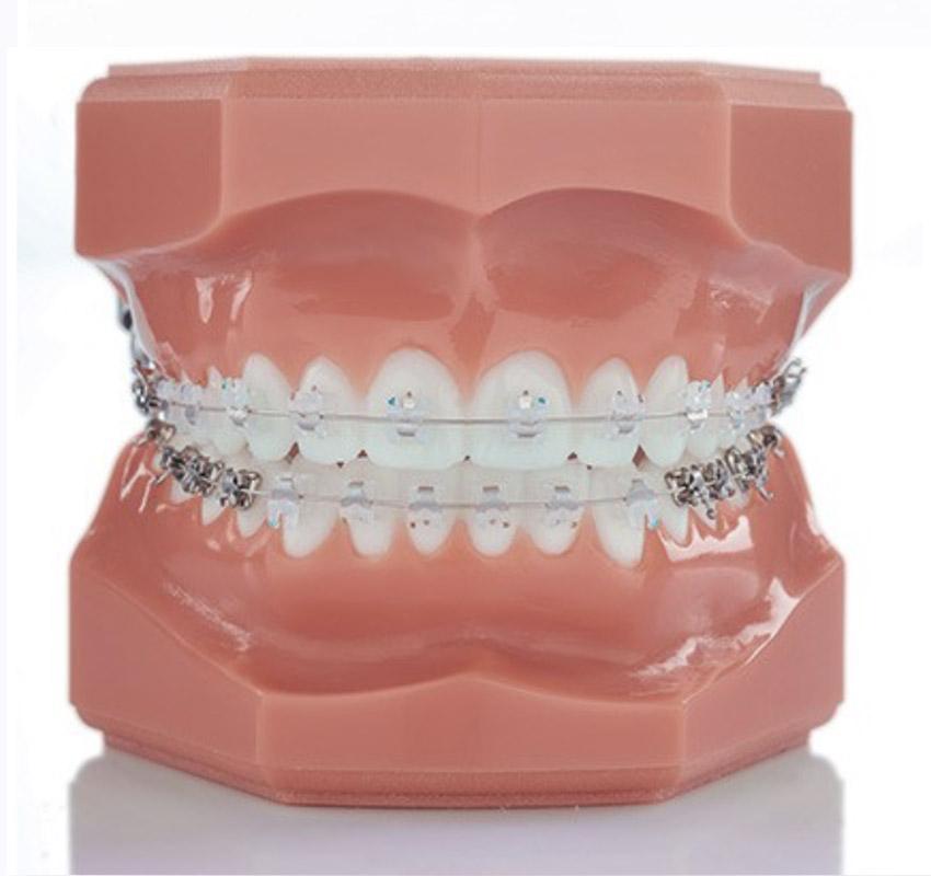 Bagues céramiques - Orthodontie Lyon Croix-Roussse