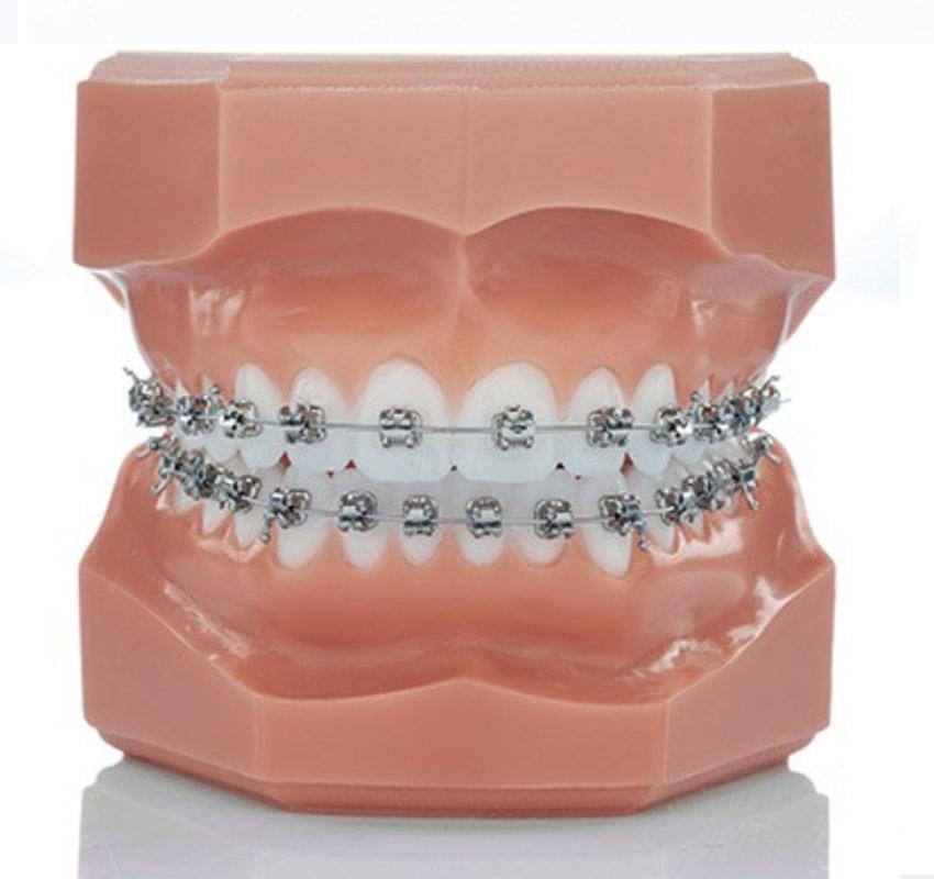 Bagues métalliques - Orthodontie Lyon Croix-Rousse