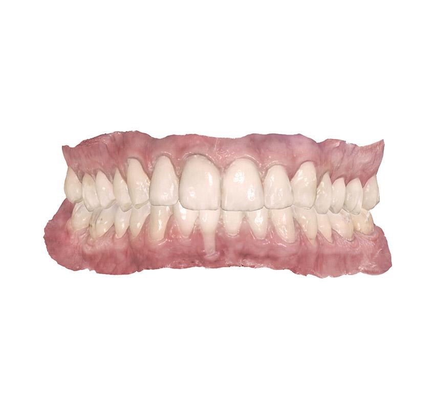 traitement-orthodontie-dentition