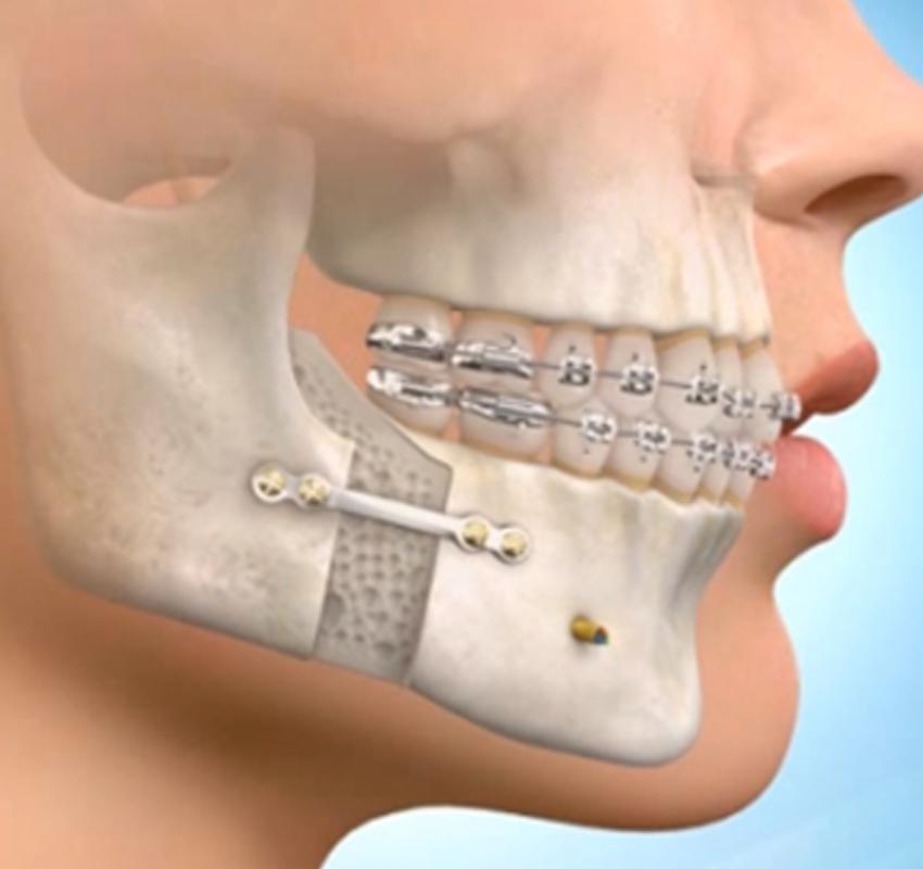 CHIRURGIE ORTHOGNATIQUE - Traitement adulte - orthodontie Lyon Croix-Rousse