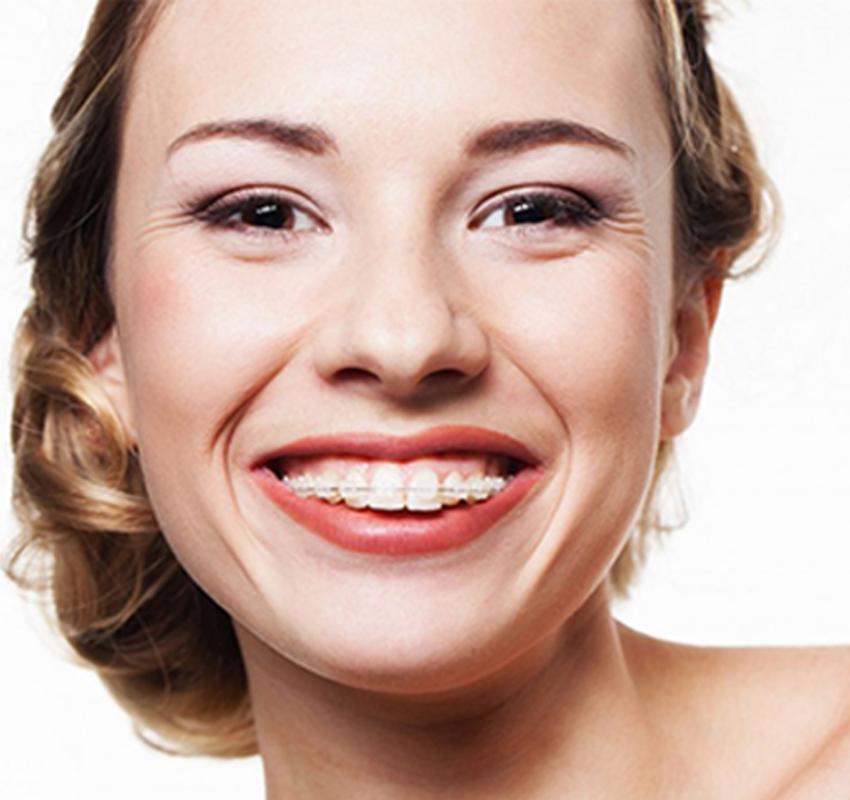Traitement adulte - orthodontie Lyon Croix-Rousse