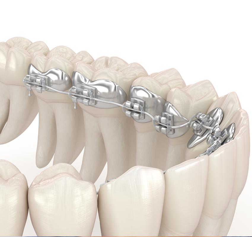 Orthodontie linguale adulte - orthodontie Lyon Croix-Rousse