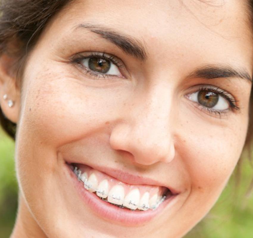Traitement céramique adulte - orthodontie Lyon Croix-Rousse